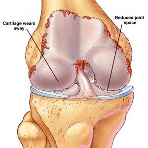 cannabis for arthritis Easy Arthritis Home Remedy Sumiton