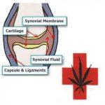 Medical Cannabis and Arthritis