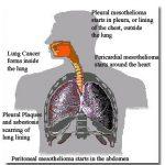 Medical Marijuana and Mesothelioma
