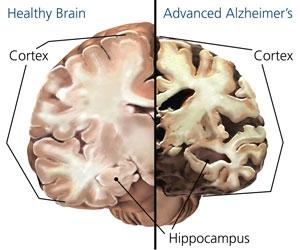 Alzheimers brain image