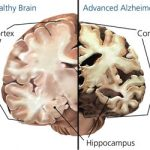Alzheimer's Treatment and Prevention using Marijuana (CBD)