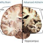 Alzheimer's Treatment and Prevention using Marijuana (CBD)