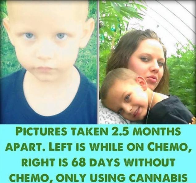 Medical Marijuana Instead of Chemotherapy