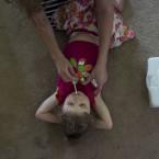 Medical marijuana changed 6-year-old girls life