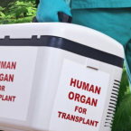 New Study Shows THC Could Delay Organ Rejection In Transplant Patients
