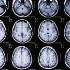 Can Marijuana Increase Endurance and Improve Memory