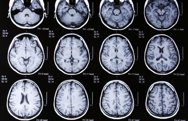 Can-Marijuana-Increase-Endurance-and-Improve-Memory
