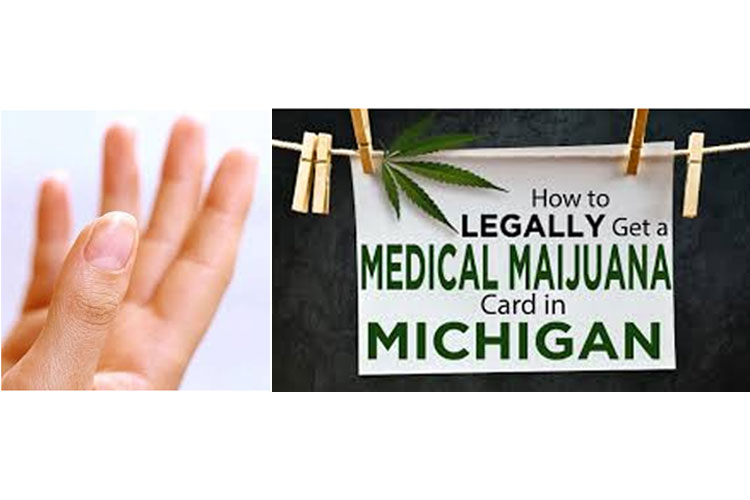 CANNABIS THE UNEXPECTED ANSWER TO NAIL-PATELLA SYNDROME IN MICHIGAN ...