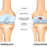 Medical Marijuana a Pain Reliever for Osteoarthritis