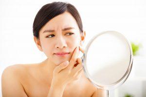 Skin Conditions CBD
